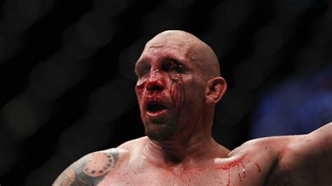 Video: Worst broken noses in UFC and MMA history