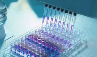 Rapid/Elisa/POCT test | Your Reliable Supplier of IVD Products